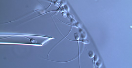 Más allá de los estudios básicos: magnificación espermática